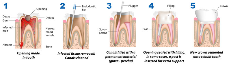 root-canal-therapy-steps-procedure-dhaka-bangladesh